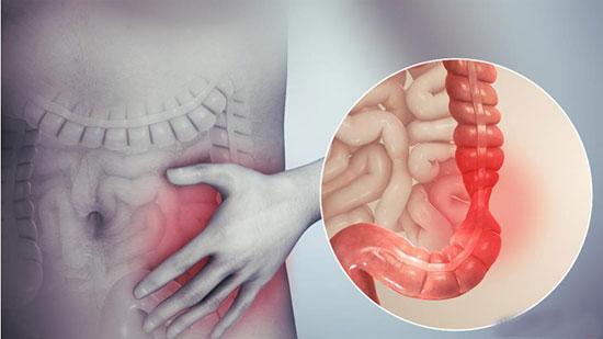سندرم روده تحریک پذیر؛ علت ها، علائم و راه حل های خانگی