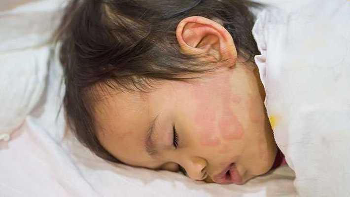کهیر پوستی در بچه ها و نوزادان کهیر پوستی در بچه ها و نوزادان