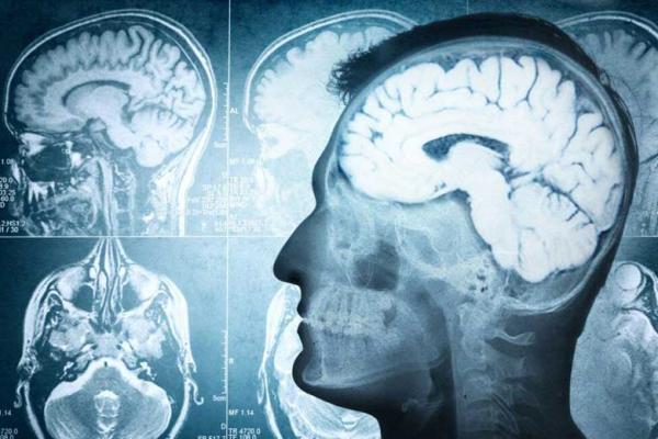 آنتی بادی کلید درمان آلزایمر و سکته مغزی